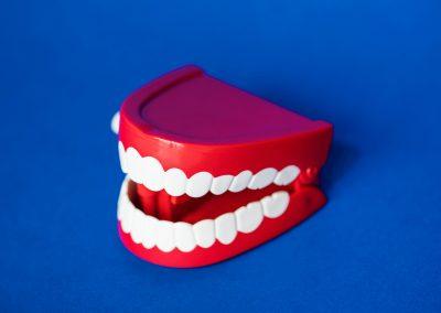 Prothese complete (dentiers) et partielle